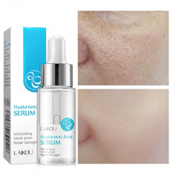 Hyaluronic acid face serum - moisturizing - shrink pores - acne marks removal - nourishing