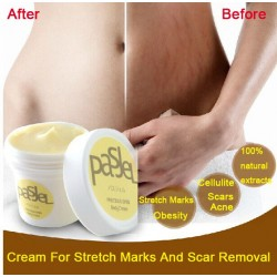 Stretch marks & scars removal cream